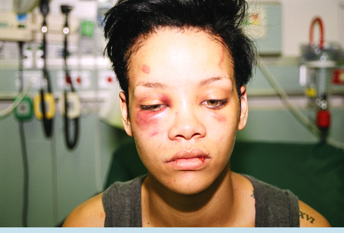 Feb 2009- The fateful day that changed Chris Brown and Rihanna's life forever. Shortly after the incident Chris turned himself in and as later released on a 50k bail. Rihanna;s identity was not released til days later.